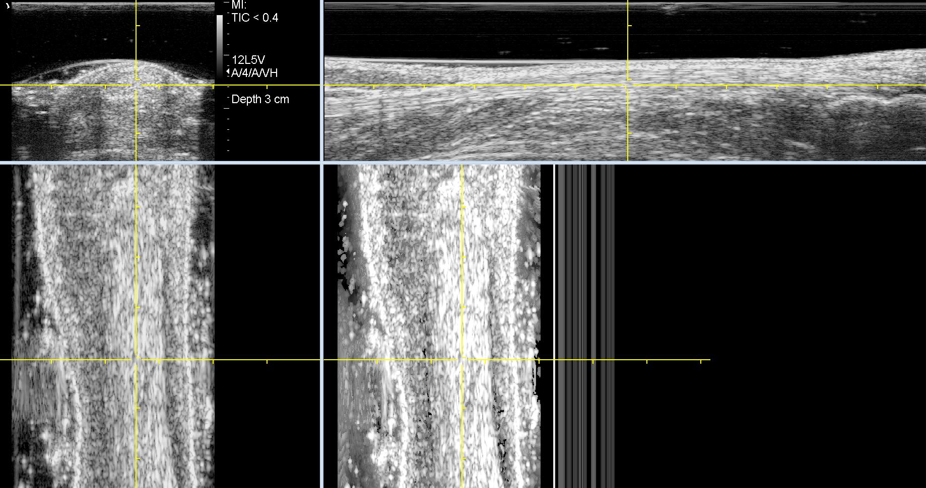 UTC van achillespees, B-beeld