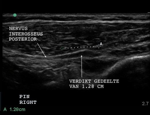 Verdikking in de nervus interosseus posterior, een zenuw in de onderarm