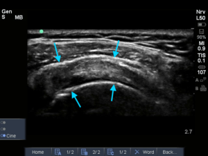 Supraspinatus links (dwarse opname)