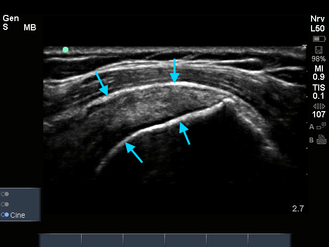 Supraspinatus links