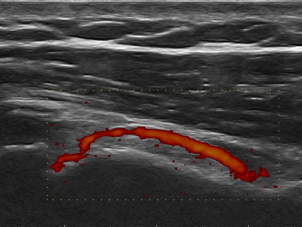 Arteria metaphysealis humeri