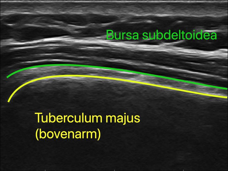 Bursa subdeltoidea (slijmbeurs)